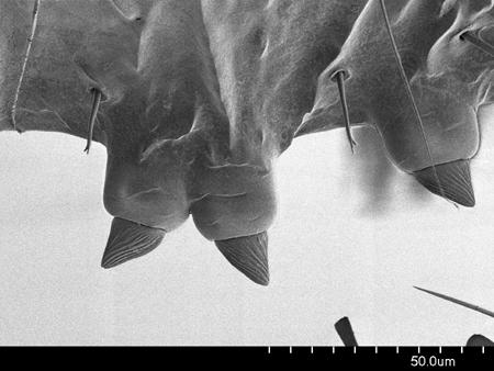 Dentiform clypeal setae on a <em>Concoctio concenta</em> worker (Scanning Electron Micrograph, Roberto Keller/AMNH)