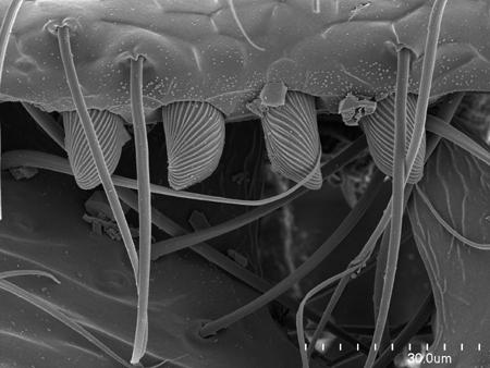 Dentiform clypeal setae on a <em>Onychomyrmex doddi</em> worker (Scanning Electron Micrograph, Roberto Keller/AMNH)
