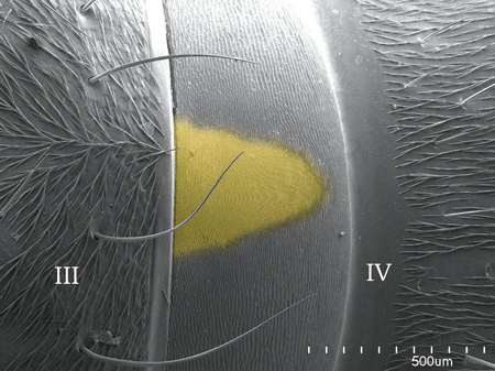 Pars stridents (in yellow) on the forth abdominal tergite in a <em>Pachycondyla villosa</em> worker (Scanning Electron Micrograph, Roberto Keller/AMNH)