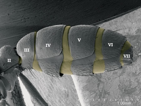 Metasomal segments showing serial tubulation of segments in a <i>Dorylus helvolus</i> worker. Presclerites in yellow (Scanning Electron Micrograph, Roberto Keller/AMNH)